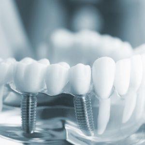 Rodzaje implantów